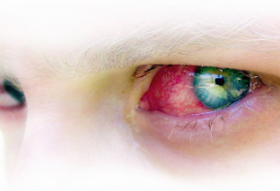Find out about Pink Attention Conjunctivitis & How you can Cure This