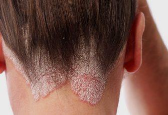 Managing Seborrheic Dermatitis Naturally