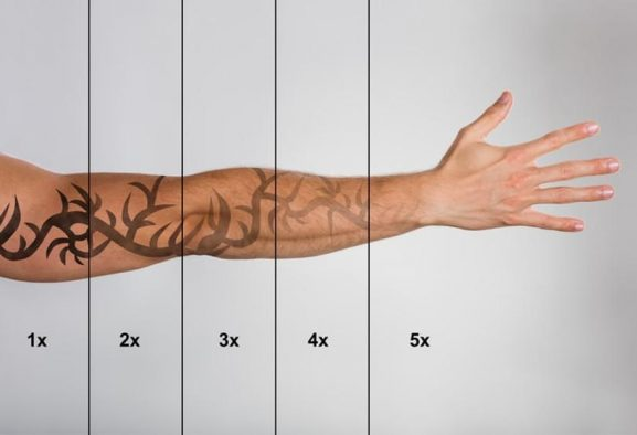 Important Information You Need To Know Before Tattoo Removal