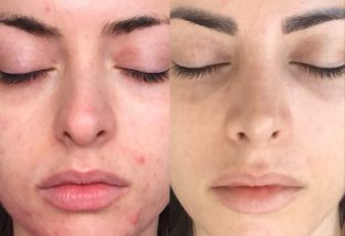 How to use Tretinoin to avoid horrible side effects?