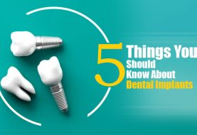 Dental Implants: Look for these 5 things while being on procedure