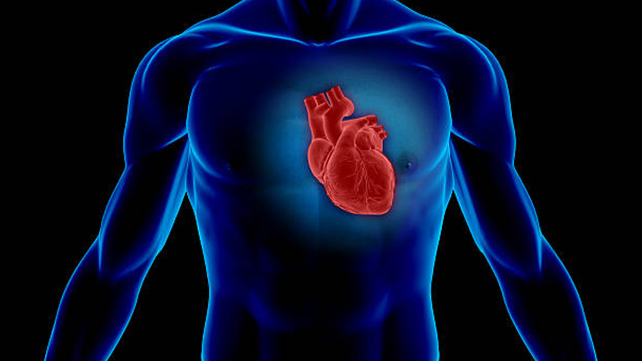 Cardiomegaly or Enlarged Heart
