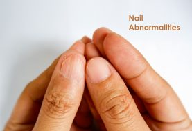 Nail Abnormalities: Causes, Symptoms & Prevention