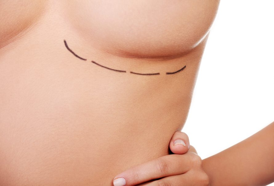 Breast Lift Scars and Breast Reduction Cost – Learn about them
