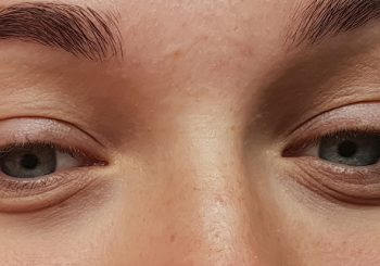 Top Lifestyle Changes You Can Make to Prevent Bags Under Eyes