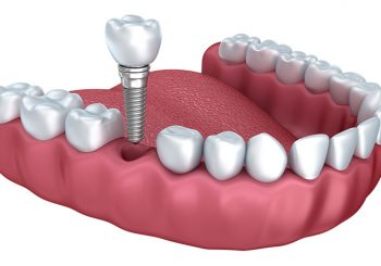 Getting Dental Implants - A Guide Of What And How!