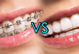Why Young People Prefer Invisalign Braces