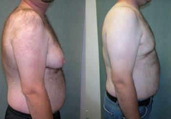 Why Avoid Undergoing Breast Implantation Surgery under the Novice Surgeon?