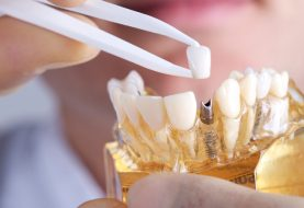 Dental Implant: An Exceptional Option For Tooth Replacement