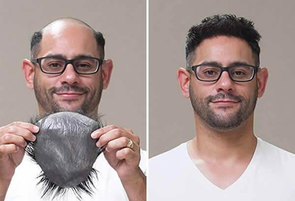 men hair system